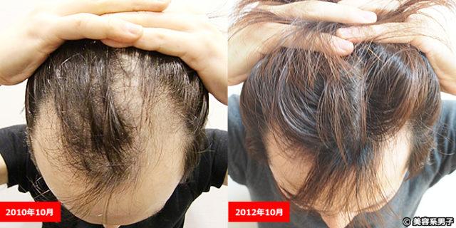 【AGA薄毛治療】ハゲが治るまでの経緯と現在の薄毛予防方法まとめ