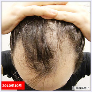【AGA薄毛治療】ハゲが治るまでの経緯と現在やっている予防方法