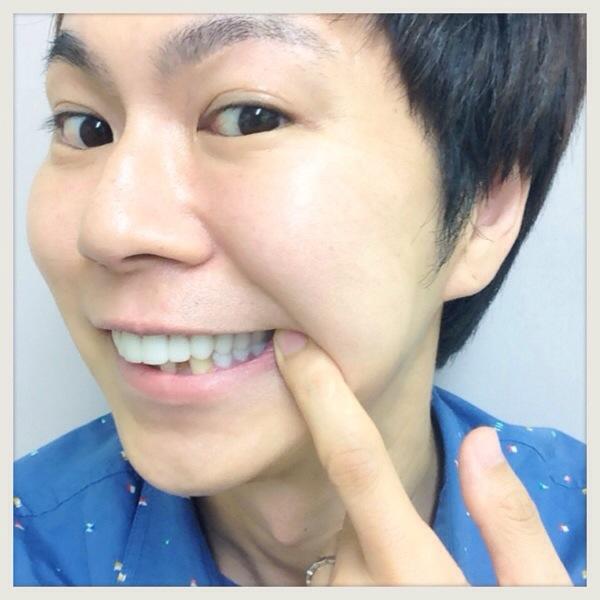 【白い歯】保険適応のハイブリットセラミック(CADCAM冠・東京)