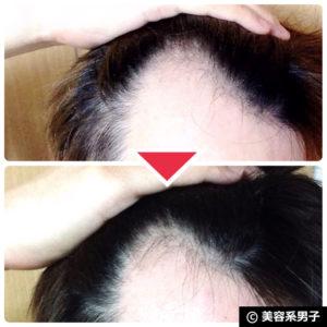 【体験2ヶ月目】重炭酸スパークリングシャワーの育毛効果-口コミ