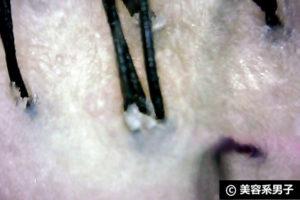 【育毛】この夏の毛穴の汚れを落とす頭皮SPAを体験してみた【東京】06