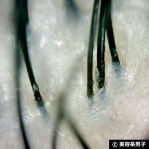 【育毛】シャンプー前の頭皮クレンジング[PureNATURAL]効果-写真あり08