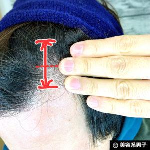 【自宅でAGA対策】ミノキシジル濃度16%[フォリックスFR16]体験開始09