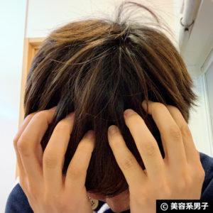 【自宅でAGA対策】ミノキシジル濃度16%[フォリックスFR16]体験開始10
