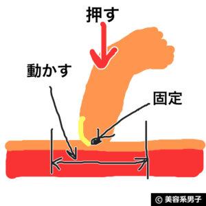 【自宅でAGA対策】ミノキシジル濃度16%[フォリックスFR16]体験開始11