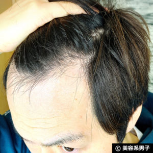 """【体験50日目】""""発毛""""シャンプー「ドクターゼロ リデニカル」効果06"""