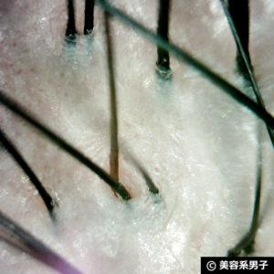 【頭皮クレンジング】ミルボン プラーミア クリアスパフォーム効果11