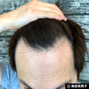 【体験40日目】ミノキシジル世界最高濃度[フォリックスFR16]育毛効果01