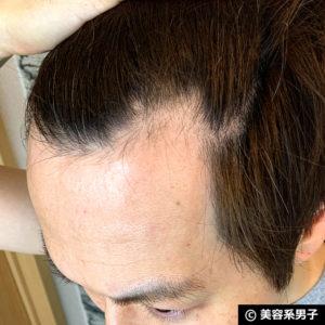 【体験40日目】ミノキシジル世界最高濃度[フォリックスFR16]育毛効果02