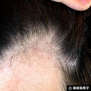 【体験40日目】ミノキシジル世界最高濃度[フォリックスFR16]育毛効果03