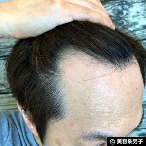 【体験40日目】ミノキシジル世界最高濃度[フォリックスFR16]育毛効果04