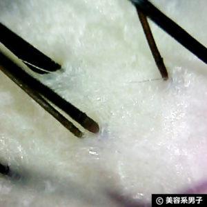 【ヘッドスパ】ミルボン頭皮クレンジング プロとセルフの違い[vie]14