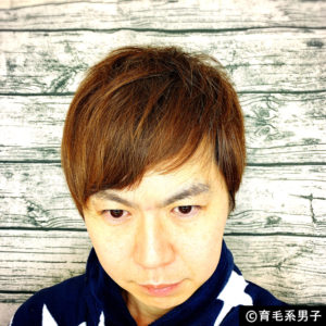 【体験60日目】ミノキシジル16%[フォリックス]育毛効果【写真あり】01