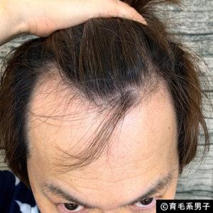 【体験60日目】ミノキシジル16%[フォリックス]育毛効果【写真あり】02