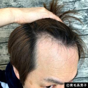 【体験60日目】ミノキシジル16%[フォリックス]育毛効果【写真あり】03