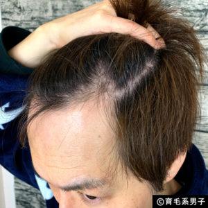 【体験60日目】ミノキシジル16%[フォリックス]育毛効果【写真あり】04