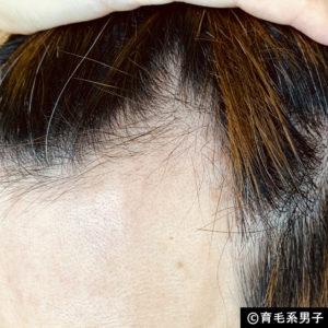 【体験60日目】ミノキシジル16%[フォリックス]育毛効果【写真あり】05