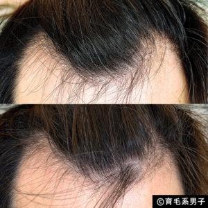 【体験60日目】ミノキシジル16%[フォリックス]育毛効果【写真あり】09