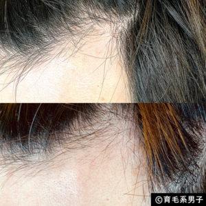 【体験60日目】ミノキシジル16%[フォリックス]育毛効果【写真あり】11
