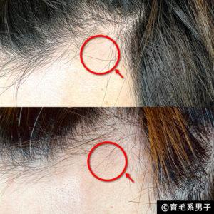 【体験60日目】ミノキシジル16%[フォリックス]育毛効果【写真あり】12