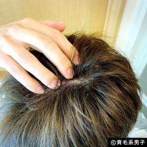 【注目の育毛成分】ドクターゼロ リデニカル エッセンス体験開始09