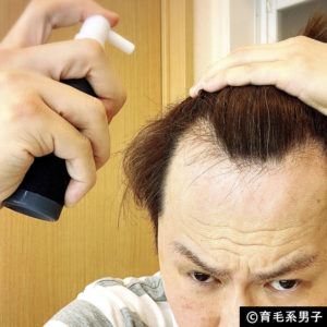 【注目の育毛成分】ドクターゼロ リデニカル エッセンス体験開始10
