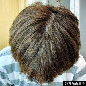 【注目の育毛成分】ドクターゼロ リデニカル エッセンス体験開始12