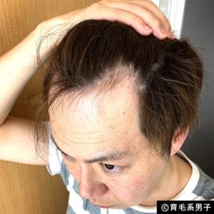 【注目の育毛成分】ドクターゼロ リデニカル エッセンス体験開始16
