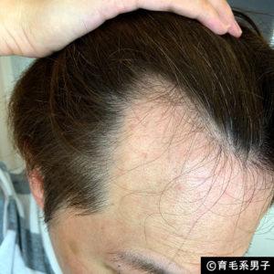 【注目の育毛成分】ドクターゼロ リデニカル エッセンス体験開始17