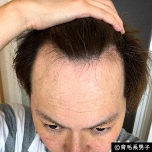 【注目の育毛成分】ドクターゼロ リデニカル エッセンス体験開始18