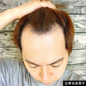 【体験64日目】新成分ドクターゼロリデニカルエッセンス育毛剤の効果01