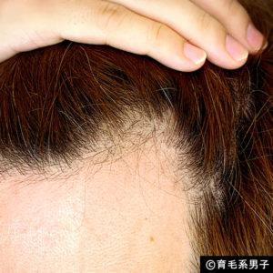 【体験64日目】新成分ドクターゼロリデニカルエッセンス育毛剤の効果03