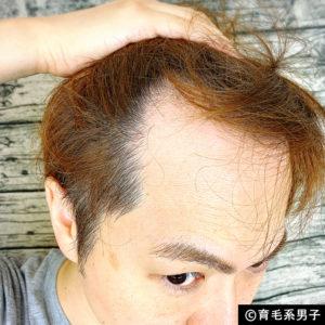 【体験64日目】新成分ドクターゼロリデニカルエッセンス育毛剤の効果04