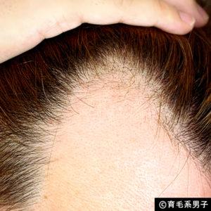 【体験64日目】新成分ドクターゼロリデニカルエッセンス育毛剤の効果05