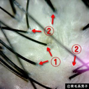 【体験64日目】新成分ドクターゼロリデニカルエッセンス育毛剤の効果07