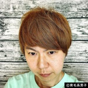 【体験100日目】リアップより効果的「リデンシル」育毛剤の使い方-01
