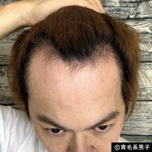 【体験100日目】リアップより効果的「リデンシル」育毛剤の使い方-03
