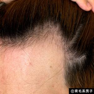 【体験100日目】リアップより効果的「リデンシル」育毛剤の使い方-05