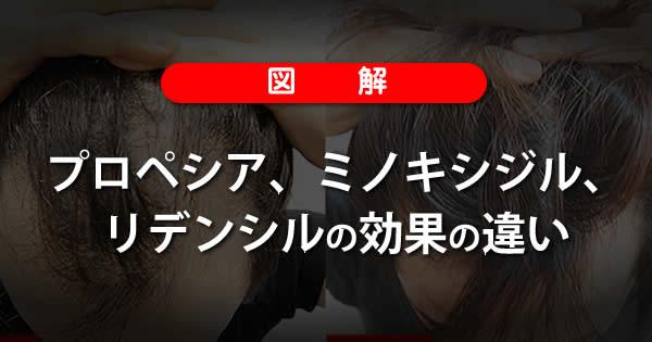 【図解】プロペシア、ミノキシジル、リデンシルの効果の違い-00