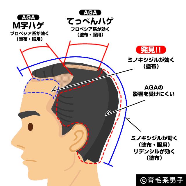 【図解】プロペシア、ミノキシジル、リデンシルの効果の違い-01