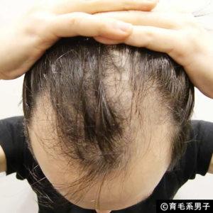【美容師の本音】僕のAGA時代の話とプロが語る「薄毛」の話-02
