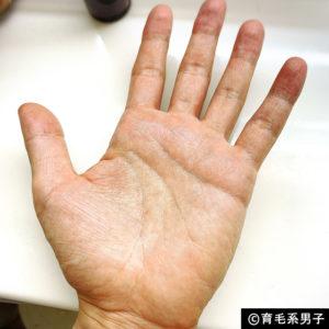 【AGA治療】デュタステリド配合育毛剤「リグロースラボD5α」体験開始-05