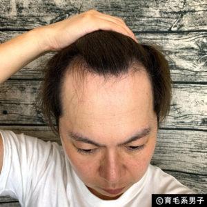 【AGA治療】デュタステリド配合育毛剤「リグロースラボD5α」体験開始-06