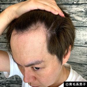 【AGA治療】デュタステリド配合育毛剤「リグロースラボD5α」体験開始-07