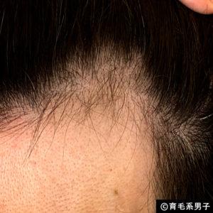 【AGA治療】デュタステリド配合育毛剤「リグロースラボD5α」体験開始-08