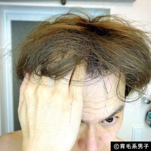 【AGA治療】デュタステリド配合育毛剤「リグロースラボD5α」体験開始-11