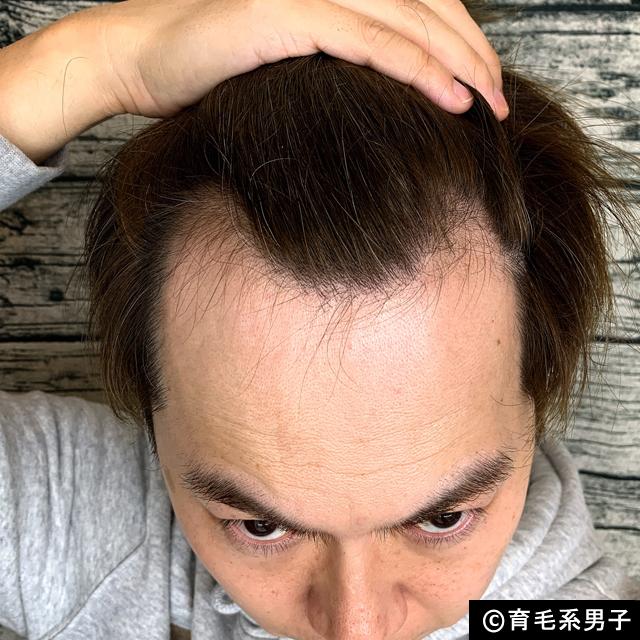 【体験60日目】プロペシア スプレー「リグロースラボD5α」効果-01