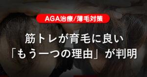 【AGA治療】筋トレが育毛に良い「もう一つの理由」が判明-薄毛対策
