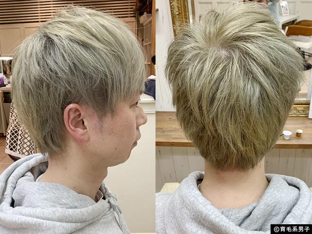 【M字はげ】薄毛と白髪が目立たないヘアスタイル(AGA治療中/40代)-02