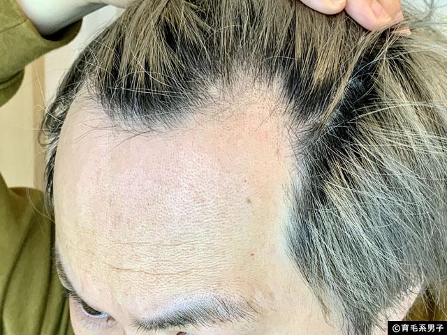 【育毛剤】ヒト幹細胞養毛料「セルヘアプラス」を試してみた-効果-03